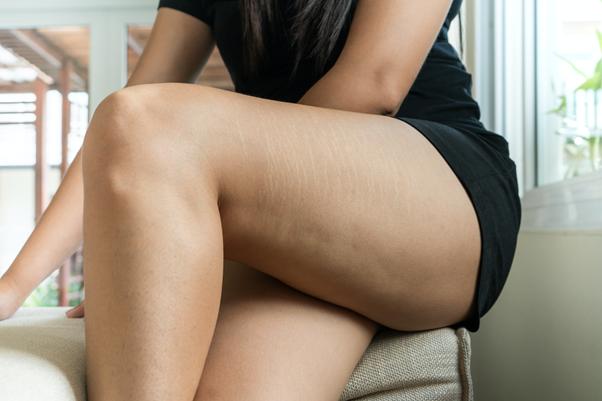 下半身が痩せない…その原因と効果的なダイエット方法を紹介!